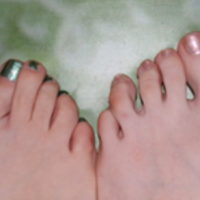 Kromme tenen en ingegroeide nagels, dat krijgt DSR ervan (17)